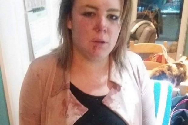ABUSE: Bethany Curtis was attacked by boyfriend